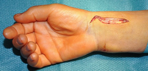 rana na zapestju